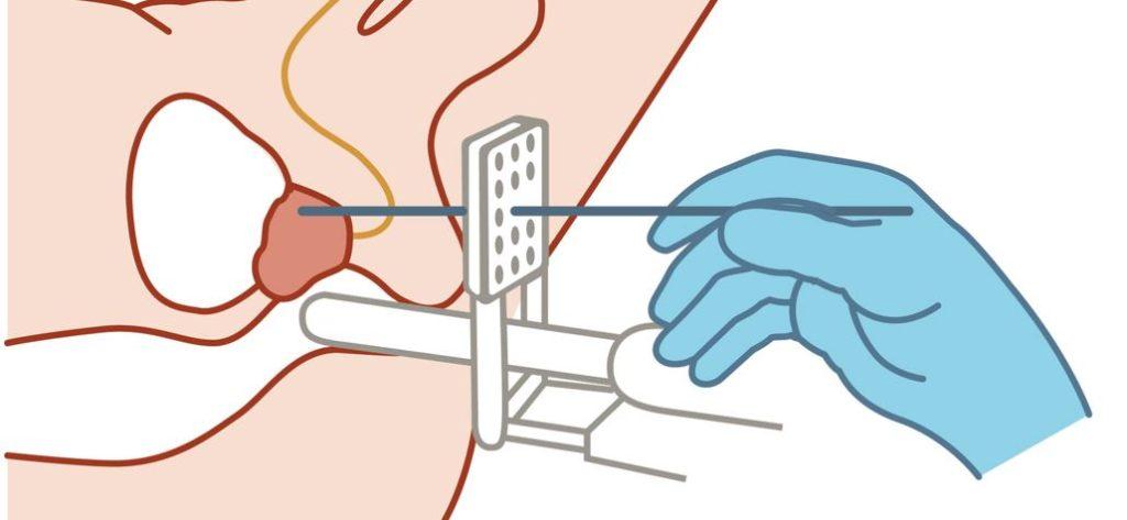 Haga Hospital Vector2 2